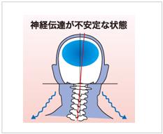 神経伝達が不安な状態の図